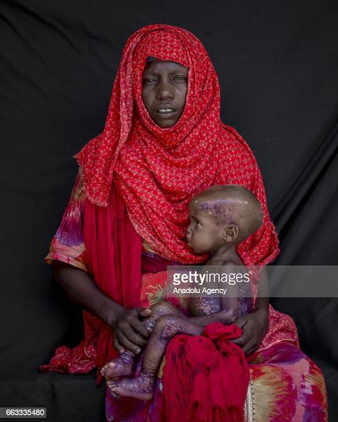 31 years old Tamimo Abdollah fled from Shabelow district 42 kilometers away from Bay due to drought holds her daughter Hawa Abdi Adam who receives...