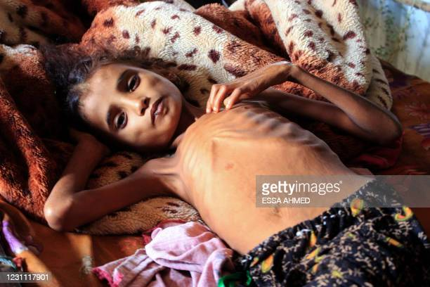 Yemeni 10-year-old girl Ahmadia Abdo, who weighs ten kilograms due to acute malnutrition, sits on her bed at a camp for the internally displaced in...