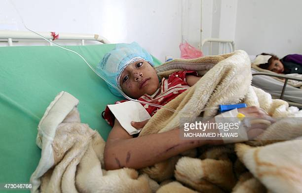 A Yemeni child lays in a bed at a hospital in the capital Sanaa on May 12 a day after she was wounded in an air strike by Saudiled coalition...