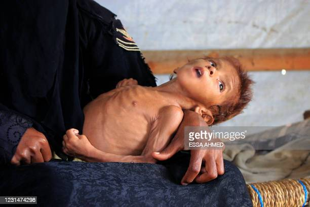 Yemeni child Meshaal Mohammad, a four-year-old weighs nine kilogrammes due to acute malnutrition, is held by his mother inside a hut at a camp for...