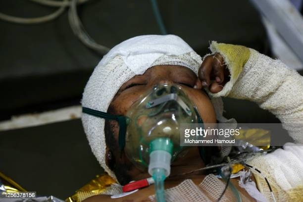 Yemeni child receives treatment at a hospital after he survived an airstrike that hit his house on July 15, 2020 in Al-Jawf province. According to...