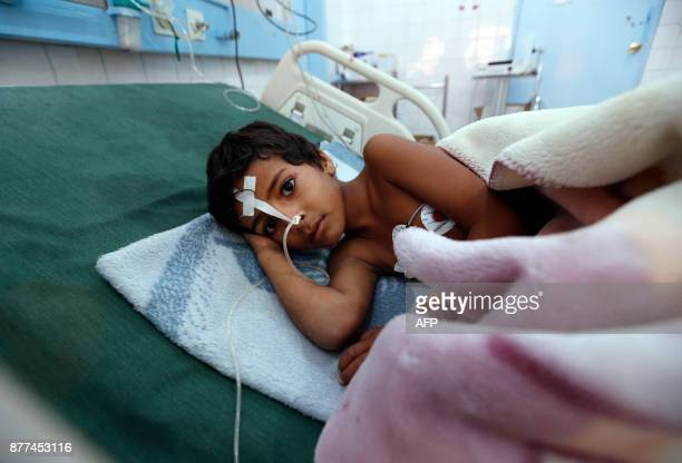 A Yemeni child suffering from diphtheria receives treatment at a hospital in the capital Sanaa on November 22 2017 The United Nations has warned that...