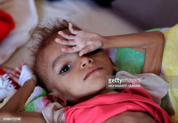 A Yemeni child suffering from malnutrition lies on a bed at a treatment centre in a hospital in the capital Sanaa on October 6 2018