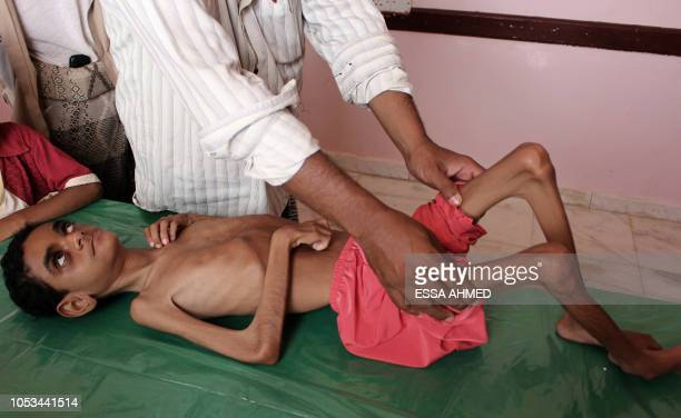 A Yemeni child suffering from malnutrition receives care at a treatment centre in a hospital in Yemen's northwestern Hajjah province on October 25...