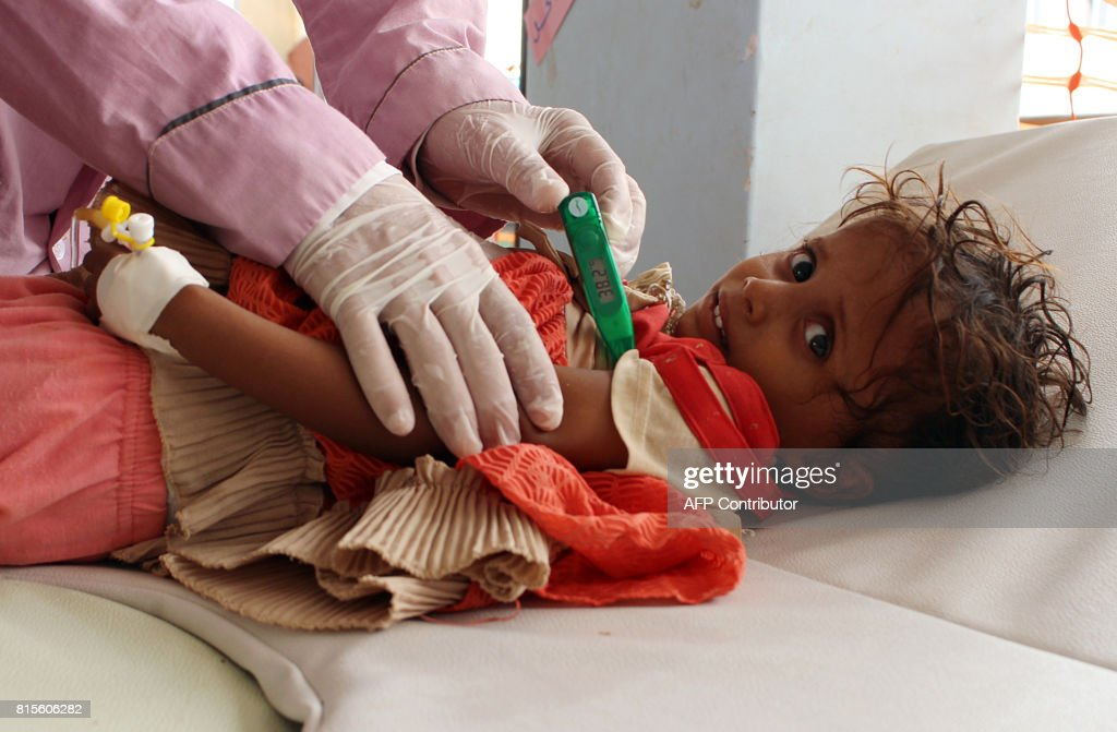 Yemeni child suspected of being infected with cholera is checked by a doctor at a makeshift hospital operated by Doctors Without Borders (MSF) in the northern district of Abs in Yemen's Hajjah province , on July 16, 2017. The country has also been hit by a cholera outbreak that has killed more than 1,600 people and left some 270,000 infected. /