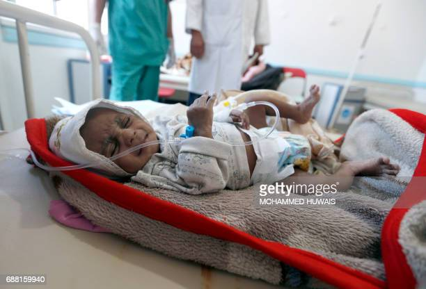 A Yemeni child suspected of being infected with cholera receives treatment at a hospital in Sanaa on May 25 2017 Cholera has killed 315 people in...