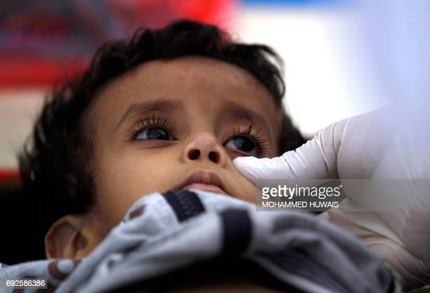 A Yemeni child suspected of being infected with cholera receives treatment at a makeshift hospital in Sanaa on June 5 2017 Yemen is descending into...