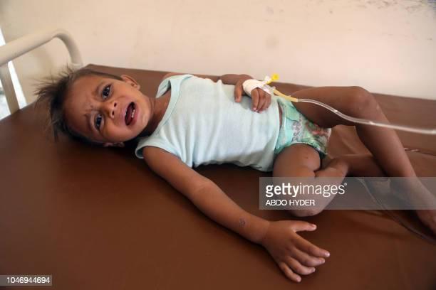 A Yemeni child suspected of having cholera is treated at a hospital in the Yemeni coastal city of Hodeida on October 6 2018