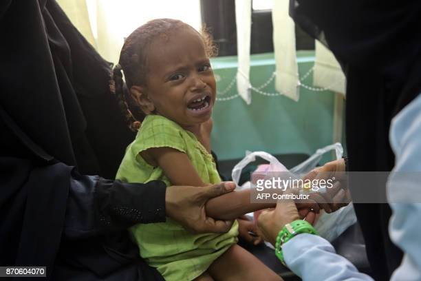 A Yemeni child who is suspected of being infected with cholera cries at a hospital in the Yemeni coastal city of Hodeidah on November 5 2017...