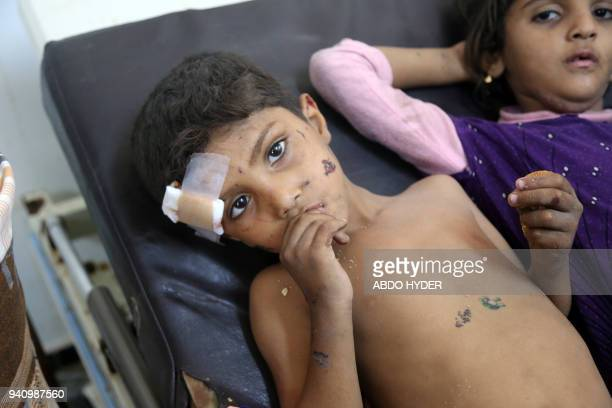 TOPSHOT Yemeni children who were injured in air strike in the district of AlHali in Hodeida province receive treatment at a hospital on April 2 2018...