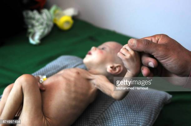 Yemeni father holds his malnourished child's hand as he receives medical treatment amid a spread of malnutrition and risk of famine at a hospital on...