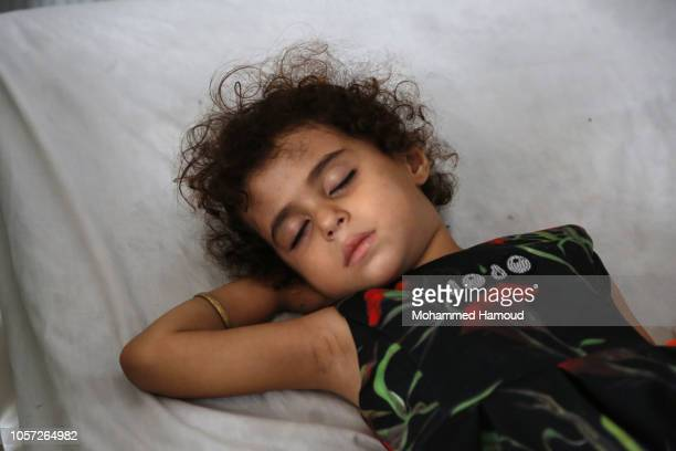 A Yemeni girl who suffers diphtheria disease leis on a bed while she receives treatment at a hospital on October 20 2018 in Sana'a Yemen United...