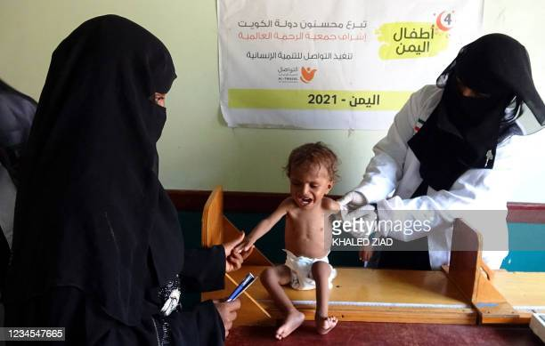 Yemeni health worker measures the upper arm of a malnourished child at a clinic in the war-ravaged western province of Hodeida, on August 7, 2021. -...