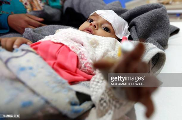 A Yemeni infant suspected of being infected with cholera receives treatment at Sabaeen Hospital in Sanaa on June 13 2017 Six weeks into the second...