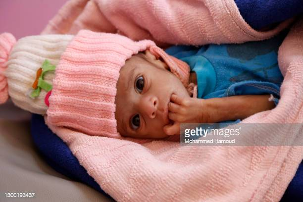 Yemeni malnourished child, Husain Ali Hassan, 6-months old, lies on a bed while he receives medical treatment at the malnutrition treating department...