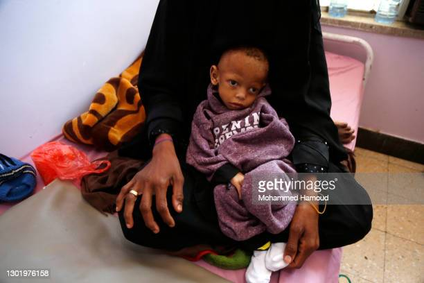 Yemeni malnourished child Radi Awadh is seen at the malnutrition department in the al-Sabeen hospital, where he receives treatment, on February 13 in...