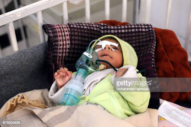 A Yemeni malnourished child receives medical treatment amid a spread of malnutrition and risk of famine at a hospital on November 15 2017 in Sana'a...