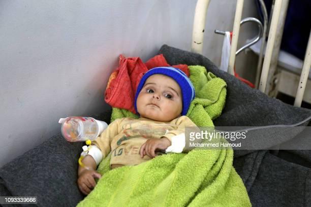 Yemeni malnourished child receives treatment at a hospital on January 12, 2018 in Sana'a, Yemen.
