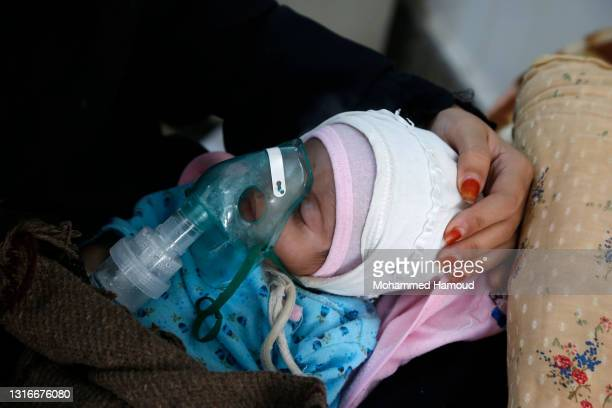 Yemeni malnourished children are seen at a hospital's malnutrition treating department on May 06, 2021 in Sana'a, Yemen.