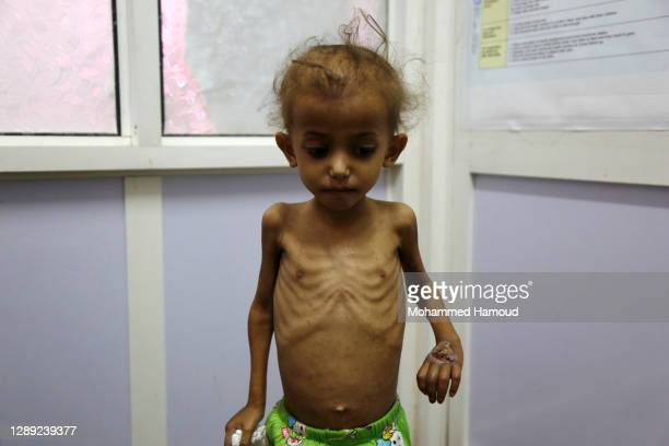 Yemeni malnourished girl stands waiting her turn to be weighed at the malnutrition treating ward in Al-Sabeen hospital where he receives treatment on...