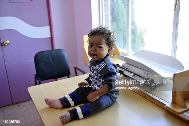 Yemeni malnourished infant cries as he waits to be weigh at a therapeutic feeding center in alSabaen Hospital in Sanaa Yemen on November 27 2014...