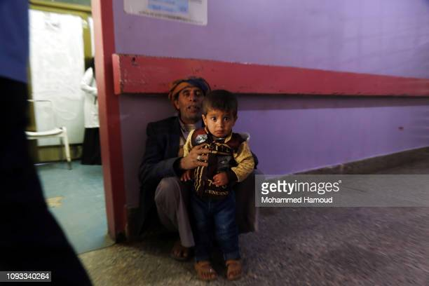 A Yemeni man holds his malnourished child waiting to receive treatment at a hospital on January 12 2018 in Sana'a Yemen