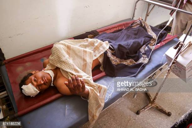 Yemeni man lies in a hospital bed after he was reportedly injured in a Saudiled coalition air strike targeting Shiite Huthi rebels and their allies...