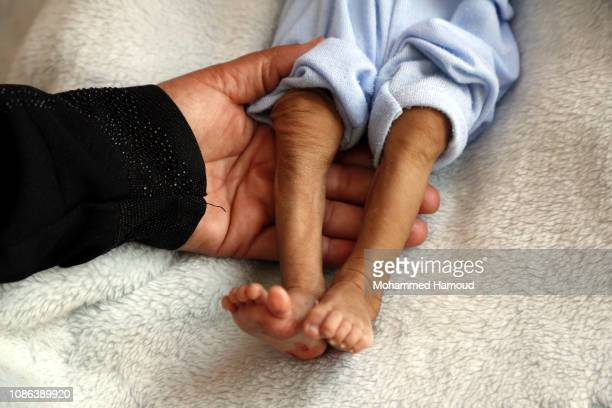 A Yemeni mother catches legs of her malnourished child as he receives treatment at a hospital on December 24 2018 in Sana'a Yemen