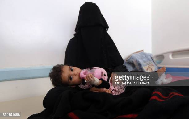 A Yemeni mother holds her child suspected of being infected with cholera at a makeshift hospital in Sanaa on June 9 2017 Yemen is descending into...