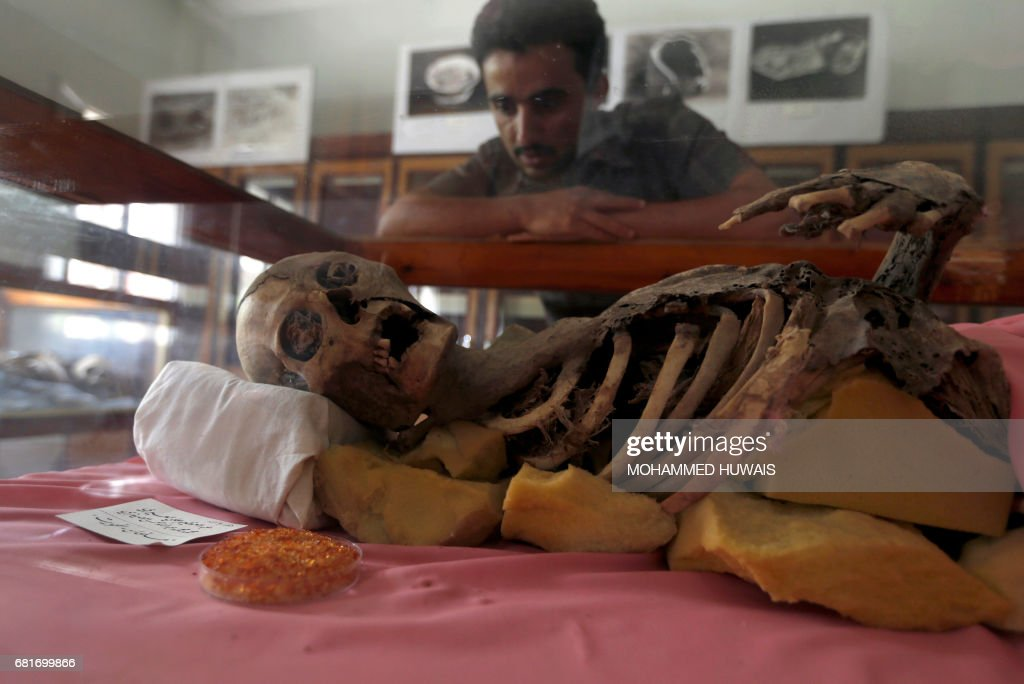 A Yemeni student looks at a millenia-old mummy displayed at Sanaa University, in the Yemeni capital on May 10, 2017. Yemen's war has claimed thousands of lives and pushed millions to the brink of famine -- and now the conflict threatens the fate of a collection of millennia-old mummies. With electricity intermittent at best and the country's ports under de facto blockade, experts are fighting to preserve the 12 cadavers in the face of heat, humidity and a dearth of preservative chemicals. / AFP PHOTO / Mohammed HUWAIS
