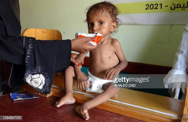 Yemeni woman feeds a malnourished child at a clinic in the war-ravaged western province of Hodeida, on August 7, 2021. - Five million people in Yemen...