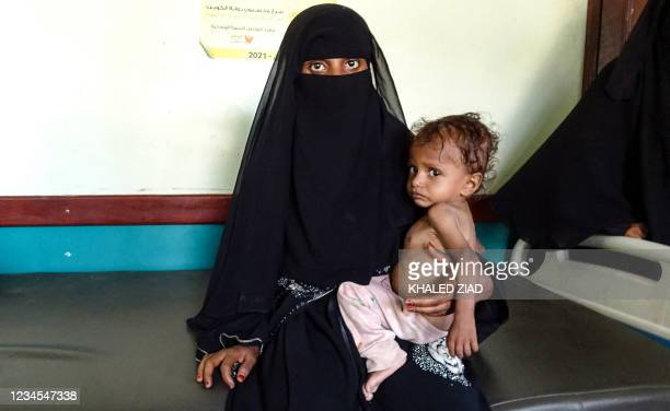 Yemeni woman holds a malnourished child at a clinic in the war-ravaged western province of Hodeida, on August 7, 2021. - Five million people in Yemen...