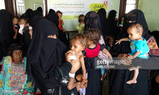 Yemeni women carry malnourished children as they wait at a clinic in the war-ravaged western province of Hodeida, on August 7, 2021. - Five million...