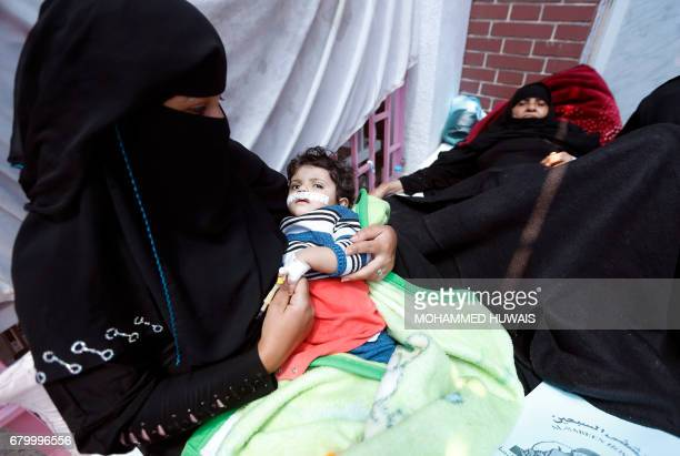 Yemenis suspected of being infected with cholera receive treatment at a hospital in Sanaa on May 6 2017 At least 570 suspected cases of cholera have...