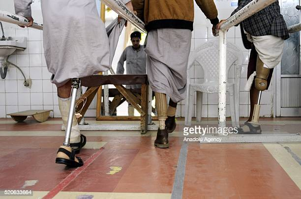 Yemenis who lost their limbs due to air attacks get treatment at the prosthetics center in Sanaa Yemen on April 12 2016