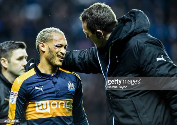 Yoan Gouffran of Newcastle United receives medical treatment after he is injured during the Sky Bet Championship Match between Reading and Newcastle...