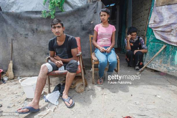 Yosyp Rats who was injured during the attack on a Roma camp near Lviv sits outside a tent in Barkasovo village Mukachevo district Zakarpattia Region...