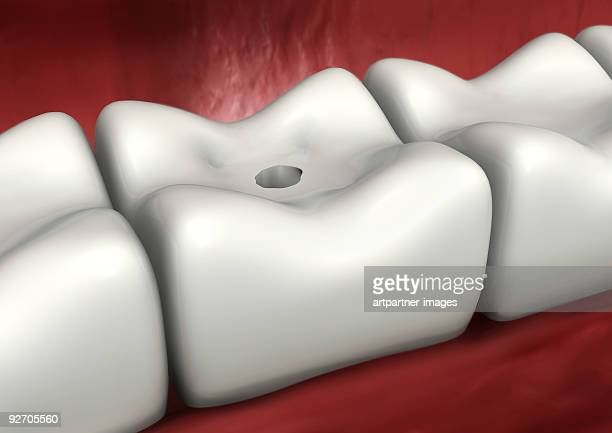 You can avoid Caries and Periodontosis