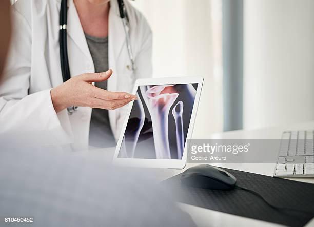 you scan has shown us a few issues - osteoporosis stock photos and pictures