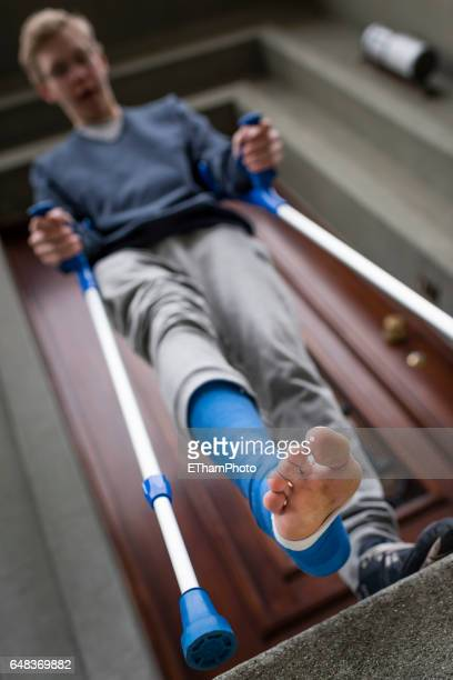 young adult walking with plaster bandage on foot - elastic bandage stock photos and pictures