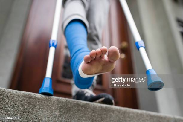 young adult walking with plaster bandage on foot - cast colors for broken bones stock pictures, royalty-free photos & images