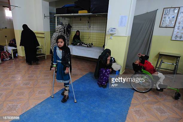 A young Afghan amputee practises walking with her prosthetic limbs at the International Committee of the Red Cross hospital for war victims and...