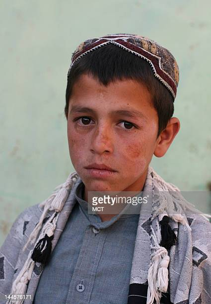 A young Afghan villager named Sadiqullah pictured on May 12 was wounded in his right ear when he was shot allegedly by US Staff Sgt Robert Bales at...