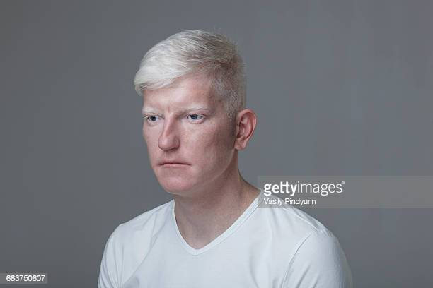 Young albino man against gray background