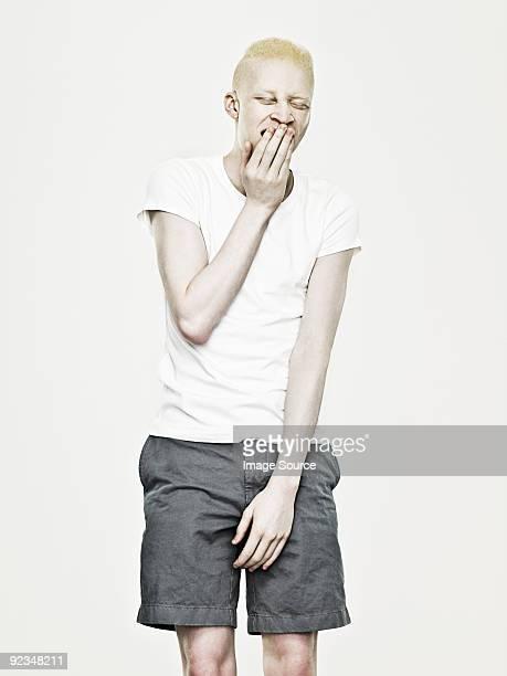 Young albino man yawning