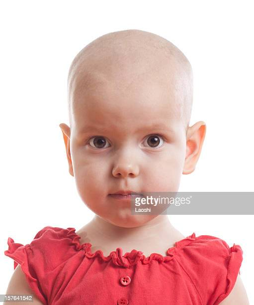 a young bald girl wearing a red dress - completely bald stock pictures, royalty-free photos & images