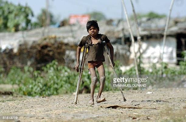 Young Bhopal slum dweller Gopal Singh makes his way on crutches after being born disabled from parents victims of the 1984 gas leak disaster at a...