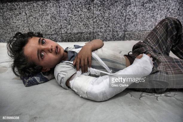 A YEMEN 3 MAY A young boy lies in the emergency room awaiting treatment