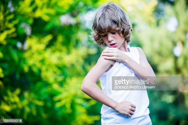 young boy scratching arm - scratching stock pictures, royalty-free photos & images