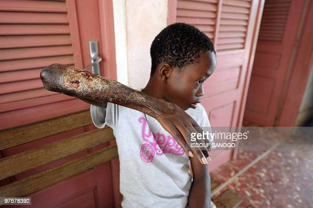 Young boy shows his arm skin damaged by Buruli ulcer, also known as the Bairnsdale ulcer or Searl ulcer, as he waits to get treatment on September...